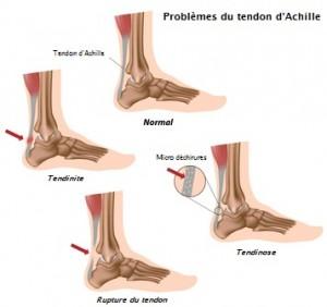 Achilles tendon problems, eps8