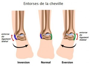 Ankle sprains, eps8